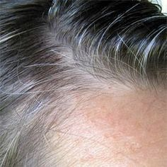 Remedies For Balding Science Confirms an Age-Old Remedy for Gray Hair and Baldness Gray Hair Growing Out, Grow Hair, Premature Grey Hair, Shampoo For Gray Hair, Grace Beauty, Hair Remedies For Growth, Going Gray, Stay Young, Beauty Recipe