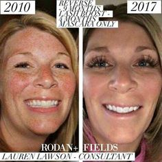 Continuos use of the #1 premium skincare brand reaps these amazing results. While supplies last, purchase a regimen + Active Hydration Serum and receive a FREE travel size sample of your regimen. Ask me how.