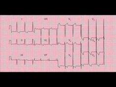 www.fastlearnecg.com : Reading and Interpreting a 12-lead ECG (EKG) - Yo...