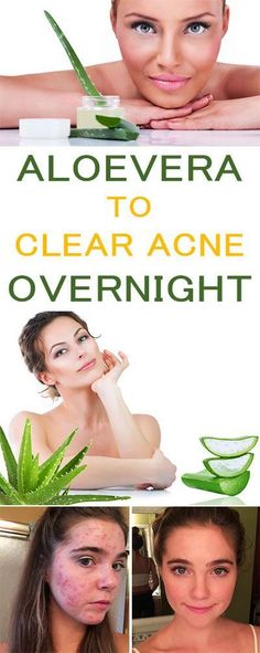 How To Use Aloe Vera To Clear Acne Overnight Aloe Vera Benefits Healthy Eon Oily Skin Care, Moisturizer For Dry Skin, Skin Care Tips, Homemade Moisturizer, Cystic Acne Remedies, Skin Care Remedies, Aloe Vera, Clear Acne Overnight, Along The Way