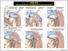 Image result for shoulder arthroscopy anchors