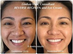 """R+F Reverse is a great regimen for those not happy with their skin discoloration and dullness. Look at what it did for Lindsay! """"I'm turning 40 soon and I've been noticing changes to my skin due to sun exposure and aging. You can totally see that my """"freckles"""" and especially those dark spots and pores have lightened and my skin looks and feels so much brighter and smoother!"""" Cheers to healthier, younger looking skin! Click the photo for your FREE skincare recommendation."""