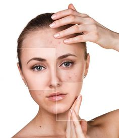 The white acne on the face is not crowded. The three steps quickly tell you - HowLifes The white acne on the face is not crowded. The three steps quickly tell you - HowLifes SEE DETAILS. Mascara Hacks, Skin Needling, Face Health, Skin Care Spa, Cosmetic Design, Skin Clinic, Summer Skin, Acne Prone Skin, Oily Skin