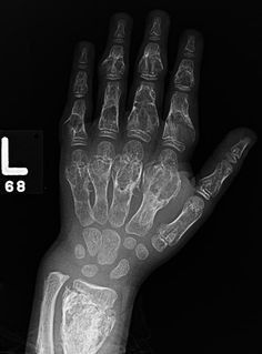 Ollier's disease | Radiology Case | Radiopaedia.org