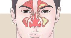 Как да се справим със запушения нос за 1 минута? | Лекува.нет
