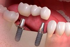 Dental bridge costs depend needs. Despite, from patient to dental bridges are reinstate your smile. Rheumatische Arthritis, Beginner Painting, Home Remedies, Whitening, Teeth, The Cure, Essential Oils, Lose Weight, How To Apply