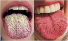 This Powerful Homemade Tea Cures Swollen Legs in Few Days – My Healthy Life Guru Healthy Tongue, Tongue Health, Health And Beauty, Health And Wellness, Health Tips, Health Blogs, White Coated Tongue, White Tongue Causes, Dental