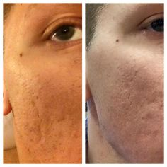 #Nerium is also used by #men and they too like #great #skin. #neirum #skincare #menskincare www.kebbert.nerium.com