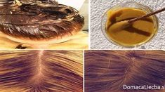 """DIY beauty & Face masks : Illustration Description Stop Hair Loss and Make Your Hair Grow Like """"Crazy"""" With THIS Homemade Recipe -Read More – Banana Hair Mask, Banana For Hair, Make Hair Grow, Hair Loss Causes, Stop Hair Loss, Hair Loss Remedies, Hair Regrowth, Hair Loss Treatment, Tips Belleza"""