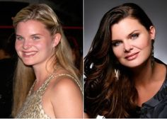 Heather Tom Plastic Surgery Before and After - https://www.celebsurgeries.com/heather-tom-plastic-surgery-before-after/