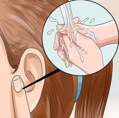 How to Get Rid of Pimples Inside the Ear. The skin of the ear is just like the skin on any other part of your body. It has pores which can become blocked, and these blocked pores often develop into painful, hard to reach bumps, or pimples. Ear Pimple, Pimples On Chin, Pimples On Forehead, Blackheads On Nose, Fitness Workouts, Get Rid Of Warts, Pimples Remedies, How To Get Rid Of Pimples, Grains