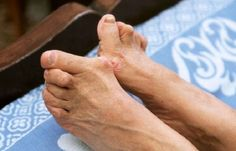 Do You Want Bunion Surgery for the Right Reasons?