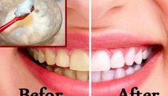 9 Natuurlijke manieren om je tanden te bleken die perfect werken.