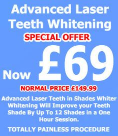 Shades Whiter Teeth Whitening Belfast, teeth whitening supplies