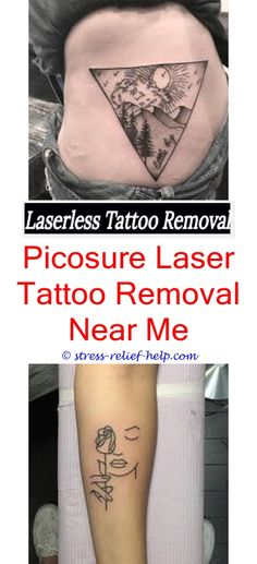 We already know that tattoos fitness is a win win right for Can you get a tattoo before surgery