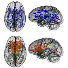 Brain networks showing significantly increased intra-hemispheric connectivity in males (Upper) and inter-hemispheric connectivity in females (Lower). Intra-hemispheric connections are shown in blue, and inter- hemispheric connections are shown