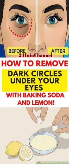 Remove Dark Circles & Under Eye Bags & Baking Soda & Lemon! Dark circles under the eyes are a common problem for numerous people. Many people try to eliminate them with different store bought products, but they are full of. Dark Circles Under Eyes, Dark Under Eye, Dark Rings Under Eyes, Remove Dark Eye Circles, Makeup Tricks, Stress, Beauty Hacks For Teens, Baking Soda And Lemon, Under Eye Bags