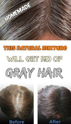 This Natural Mixture Will Get Rid Of Gray Hair – Hair Removal Natural Hair Tips, Natural Hair Styles, Long Hair Styles, Natural Skin, Grey Hair Before And After, Beauty Secrets, Beauty Hacks, Diy Beauty, Grey Hair Remedies