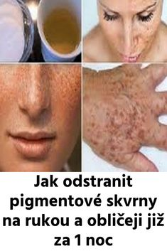 Jak odstranit pigmentové skvrny na rukou a obličeji již za 1 noc Homemade Beauty Tips, Diy Beauty, Beauty Hacks, Health And Beauty, Healthy Life, Mirrored Sunglasses, Detox, Eye Makeup, Dark Spots