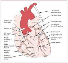 Coronary artery anatomy. a) Left coronary artery and b) Right ...