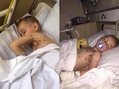 Armario de Noticias: Le dio un ibuprofeno a su hijo y empezó su infiern...