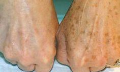 La pelle del viso e delle mani oltre ad essere particolarmente delicata, è quella maggiormente esposta agli agenti atmosferici. Con l'avanzare dell'età è comune che in queste zone, oltre ai segni di cedimento e alla presenza delle rughe, inizino a comparire delle piccole macchie scure. Quest...