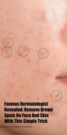 Natural skin care remedies - Famous Dermatologist Revealed Remove Brown Spots On Face And Skin Sun Spots On Skin, Black Spots On Face, Brown Spots On Hands, Spots On Legs, Dark Spots, How To Get Rid, How To Remove, Sunspots On Face, Spots On Forehead