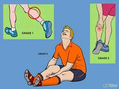 Treat a Torn Calf Muscle - wikiHow