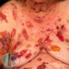 Pemphigus vulgaris treatment in bangalore dating