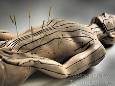 Abdominal Acupuncture Points with Needles - Male: Acupuncture points on abdomen can be used to improve digestion, assist liver function, encourage urinary flow and address hormonal imbalances. http://www.acupuncture-treatment.com/updates/acupuncture/abdominal-acupuncture-points-with-needles/