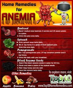 Completely Heal Any Type Of Arthritis - Arthritis Remedies Hands Natural Cures - . - Arthritis Remedies Hands Natural Cures Completely Heal Any Type Of Arthritis - Arthritis Hands, Types Of Arthritis, Psoriasis Arthritis, Inflammatory Arthritis, Juvenile Arthritis, Arthritis Relief, Natural Remedies, Health Foods, Vitamins