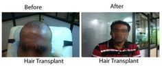 TheNewYouClinic Offers Best Hair Transplant Solution for Hair Baldness/Loss and Hair loss Treatment at Bangalore, India.  For Details: http://www.thenewyouclinic.com/hair-transplant.html