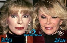 Joan Rivers Before and After Plastic Surgery | http://plasticsurgeryfact.com/too-much-plastic-surgery-before-and-after-worst-celebrity-plastic-surgery/