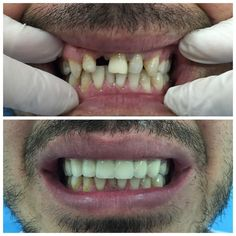 #smile #veneers #porcelain #dentistry #happiness #dentist by dt.ezgican Our General Dentistry Page: http://www.myimagedental.com/services/general-dentistry/ Google My Business: https://plus.google.com/ImageDentalStockton/about Our Yelp Page: http://www.yelp.com/biz/image-dental-stockton-3 Our Facebook Page: https://www.facebook.com/MyImageDental Image Dental 3453 Brookside Road Suite A Stockton CA 95219 (209) 955-1500 Mon - Fri: 8am - 5pm myimagedental@gmail.com