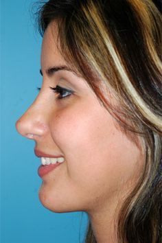 after nosejob Bulbous Nose, Pretty Nose, Chin Implant, Nose Reshaping, Rhinoplasty Before And After, Wide Nose, Perfect Nose, Button Nose, Nose Shapes