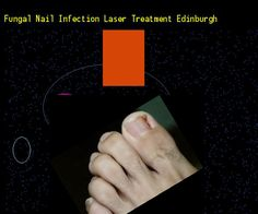 Fungal nail infection laser treatment edinburgh - Nail Fungus Remedy. You have nothing to lose! Visit Site Now