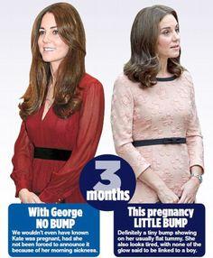 Duke And Duchess, Duchess Of Cambridge, Maternity Fashion, Maternity Style, Pregnancy Bump, Morning Sickness, Flat Tummy, Princess Charlotte, British Royals