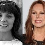 Insignificant Nose Job Marlo Thomas Got Carried Away Marlo Thomas, Facial Fillers, Brow Lift, Celebrity Plastic Surgery, Cosmetic Procedures, Celebrity Photos, Brows, Celebrities, Face