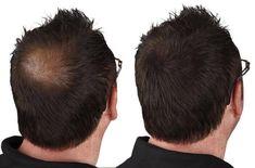 Ihre Haare werden dünner. Erfahren Sie, was man gegen haarausfall tun kann und durch welche Behandlung man wieder dickeres Haar bekommt