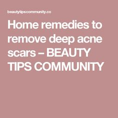 Home remedies to remove deep acne scars – BEAUTY TIPS COMMUNITY Scar Remedies, Home Remedies For Acne, Acne Help, Coconut Oil For Acne, Acne Scar Removal, Acne Solutions, Hormonal Acne, How To Get Rid Of Acne