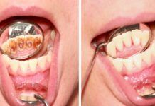 Many people experience tartar buildup on their teeth but they feel embarrassed to talk about it. Tartar is a hardened plaque on the teeth. Gum Health, Dental Health, Oral Health, Health Tips, Gum Disease Cure, Gum Disease Treatment, Tartar Removal, Bad Breath Remedy, Plaque Removal