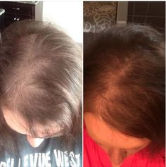 "Lor's hair loss was due to a bad reaction from Bosley with minoxidil. She had thin hair to begin with but Bosley made it fall out in chunks!! ""I think it's important to understand that sometimes it's a marathon not a sprint with hair regrowth. I've used everything Monat sells and had the best results when I really started using the Rejuvinique oil as a pre-shampoo twice a week!"""