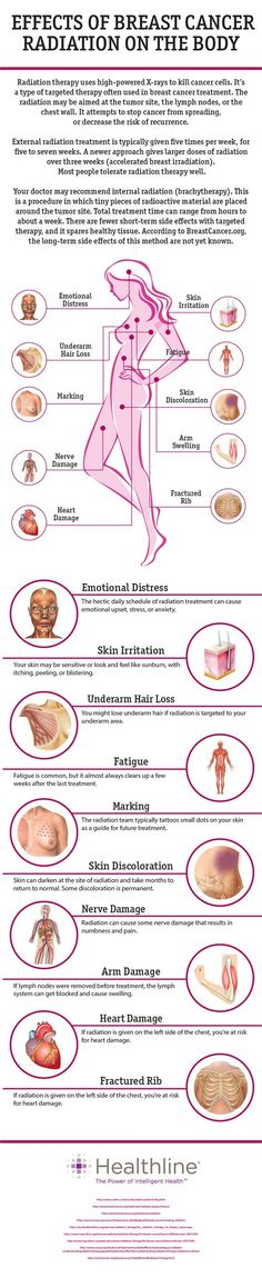 Effects of Breast Cancer Radiation on the Body... Fearless living 100%...pretty sure my ribs will never recover on my left side...