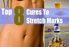 Erase Those Nasty Stretch Marks Naturally | Health & Natural Living