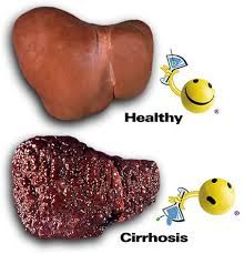 Cirrhosis is a condition whereby the liver is so extensively damaged that it may no longer function, which can result in death. In its advanced stages, the only option for cirrhosis is liver transplantation.