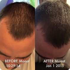 Image result for monat before and after pictures