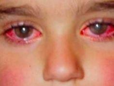 Looptometristas de Australia han lanzado una advertencia a los padrescuyos hijos juegan conpunteros láser, este dispositivo no es ningún juguete y está causando laperdida de visión en los niños. No son solo palabras, hace poco en Australia...
