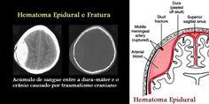 HEMATOMA EPIDURAL OU EXTRADURAL :: Clínica Dr. Alexandre Cruzeiro