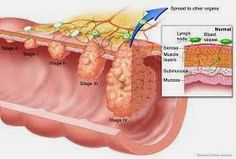 Home remedies to prevent colon cancer. How to prevent and treat colon cancer? How to get rid of colon cancer naturally? Best colon cancer remedies at home. Cancer Cure, Cancer Cells, Stage 4 Colon Cancer, Cancer Facts, Endocannabinoid System, Natural Colon Cleanse, Cancer Fighting Foods, Ulcerative Colitis, Health Fitness