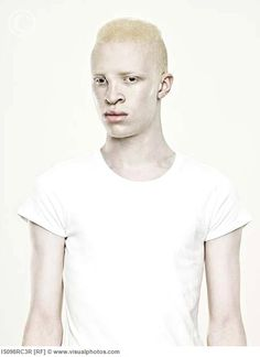 Love albino people.